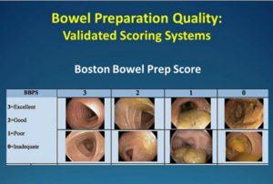 Bowel Preparation Quality: Validated Scoring Systems