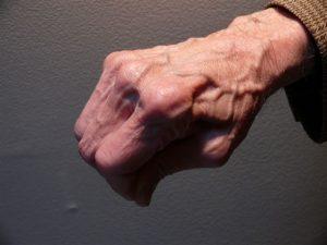 Dr Jerry Siegel - Figure 3